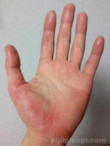 バスソルト療法で完治する掌蹠膿疱症