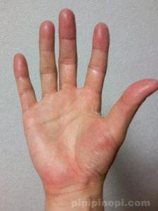掌蹠膿疱症の完治まで