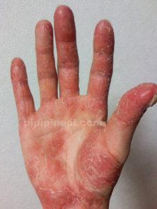 掌蹠膿疱症の治療