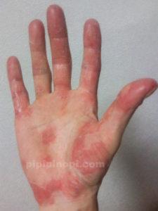 掌蹠膿疱症は完治します
