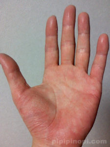 掌蹠膿疱症バスソルト改善