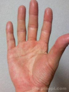 掌蹠膿疱症バスソルト療法で完治