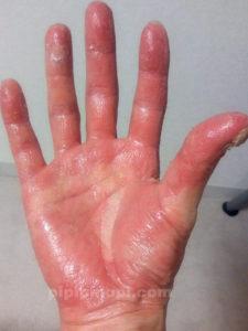 掌蹠膿疱症バスソルト療法