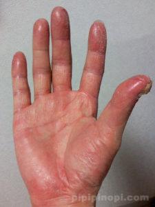 掌蹠膿疱症ビオチン療法