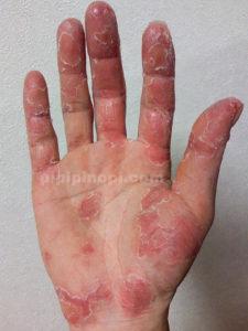 掌蹠膿疱症完治まで