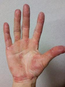 掌蹠膿疱症完治ブログ