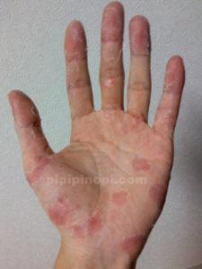 掌蹠膿疱症完治期間