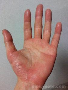 掌蹠膿疱症改善方法