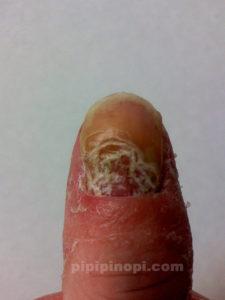 掌蹠膿疱症爪剥離