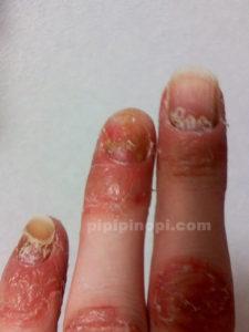 掌蹠膿疱症爪治療