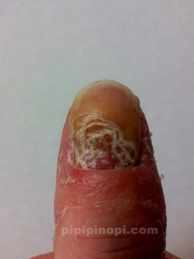掌蹠膿疱症爪腐る
