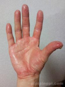 掌蹠膿疱症画像手