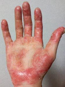掌蹠膿疱症発症原因