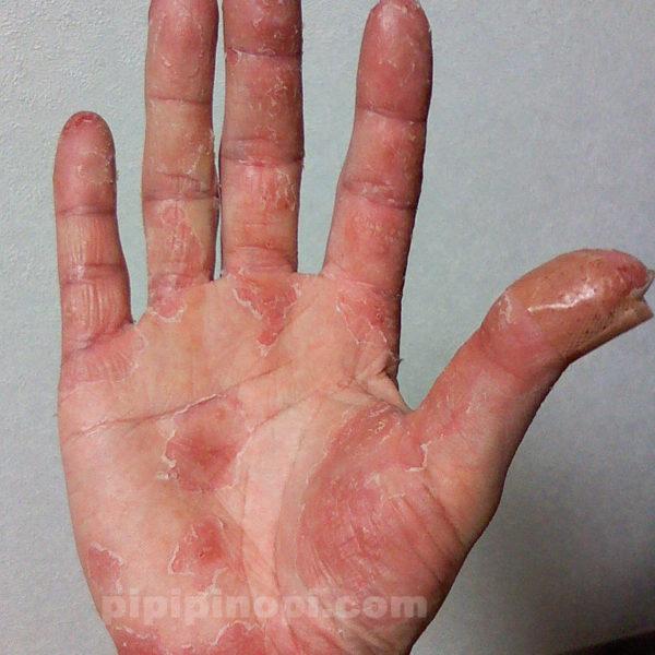 掌蹠膿疱症の完治ブログ